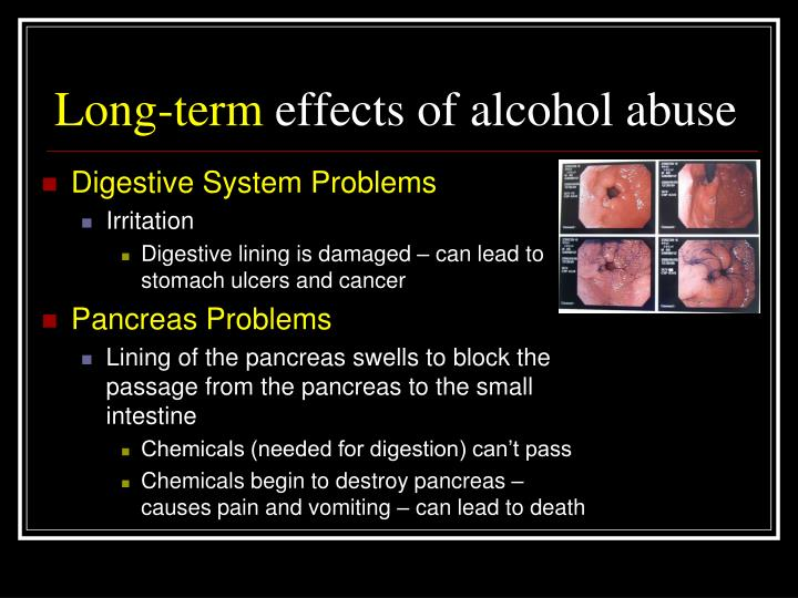 the negative aspects and effects of alcoholism What are the negative effects of too much alcohol  korsakoff's syndrome is a mental disorder characterized by disproportionate memory loss in relation to other mental aspects when these two disorders occur together, the term wernicke-korsakoff syndrome is used  top alcohol and nutrition related articles aches, pain, fever.