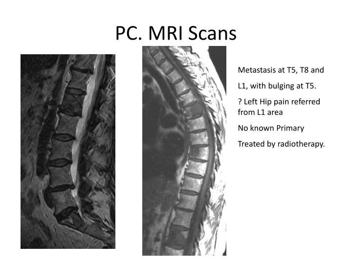 PC. MRI Scans