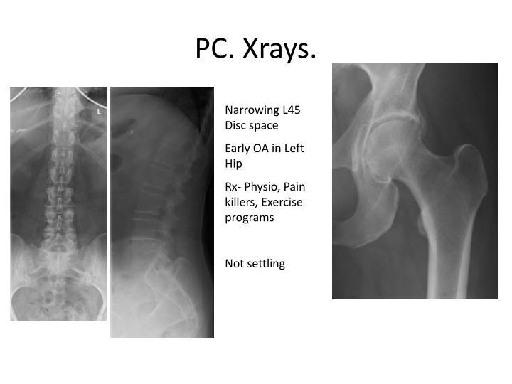 PC. Xrays.