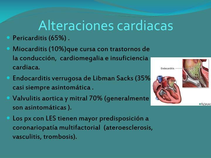 Alteraciones cardiacas
