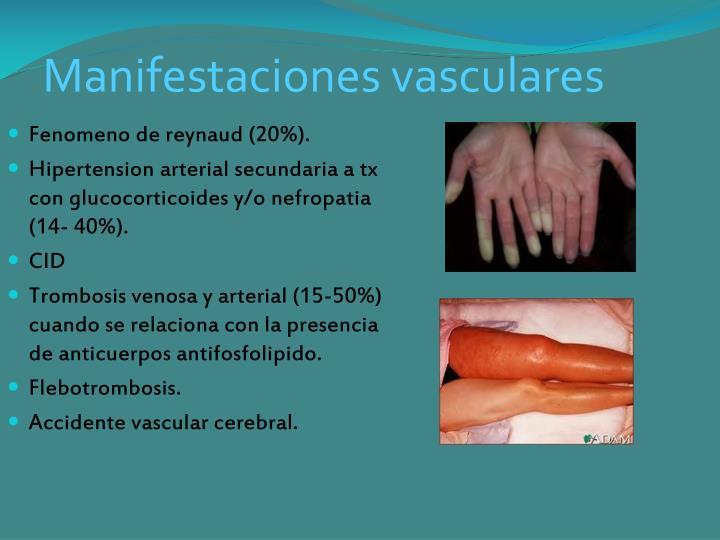 Manifestaciones vasculares