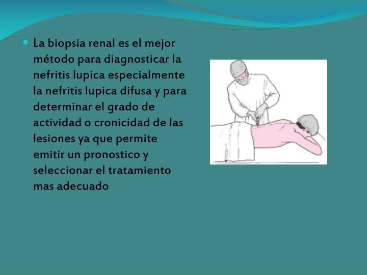 La biopsia renal es el mejor método para diagnosticar la nefritis lupica especialmente la nefritis lupica difusa y para determinar el grado de actividad o cronicidad de las lesiones ya que permite emitir un pronostico y seleccionar el tratamiento mas adecuado