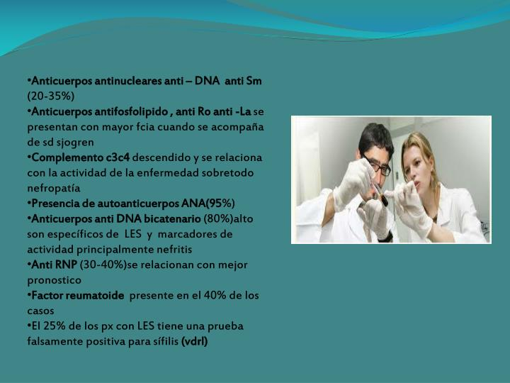 Anticuerpos antinucleares anti – DNA  anti Sm