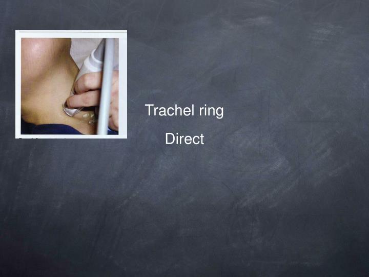 Trachel ring