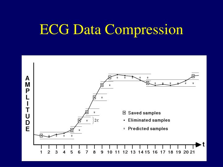 ECG Data Compression