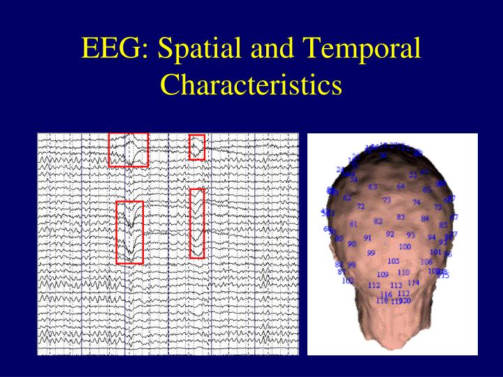 EEG: Spatial and Temporal Characteristics