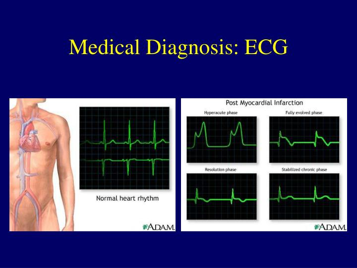 Medical Diagnosis: ECG