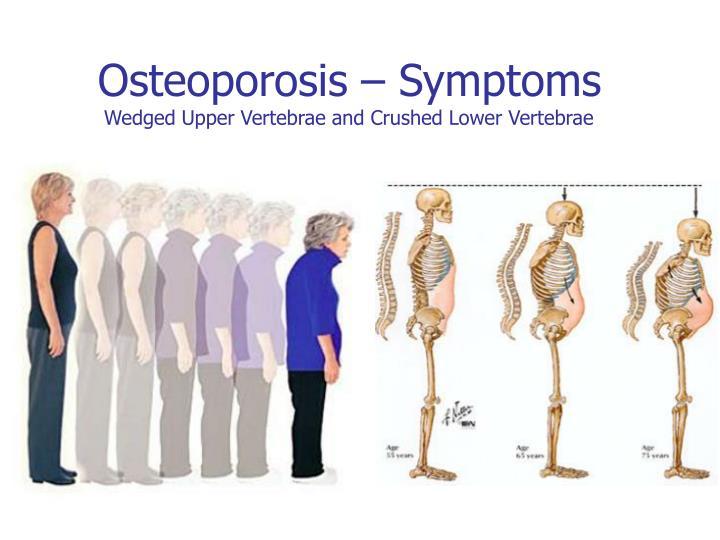 Osteoporosis – Symptoms