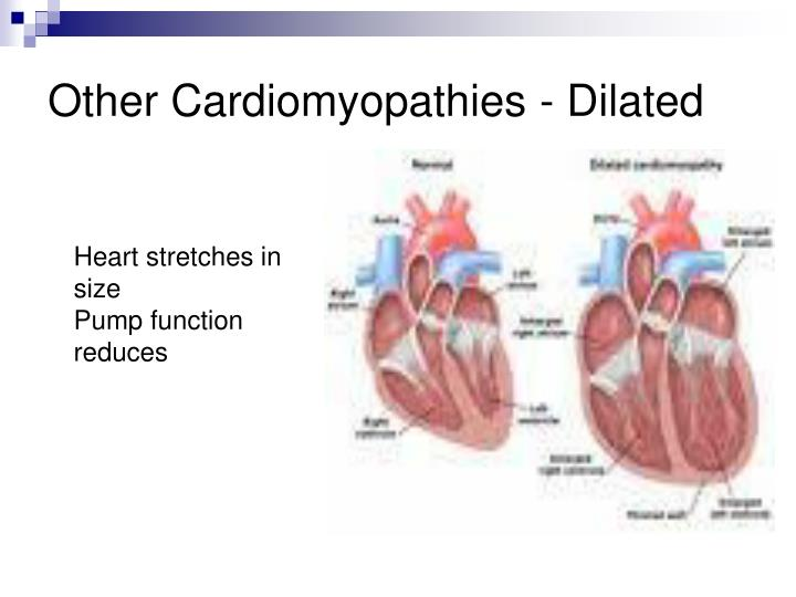 Other Cardiomyopathies - Dilated