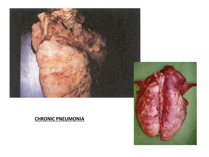 CHRONIC PNEUMONIA