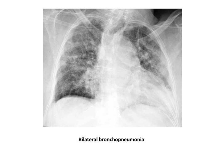 Bilateral bronchopneumonia