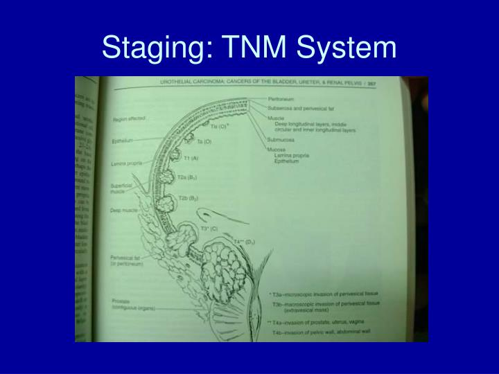 Staging: TNM System