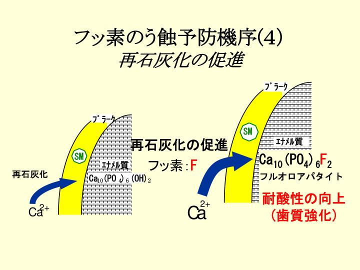 フッ素のう蝕予防機序