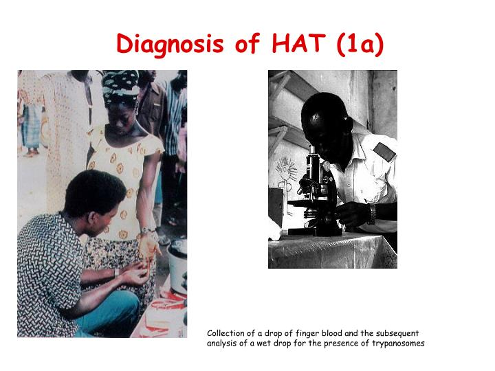 Diagnosis of HAT (1a)