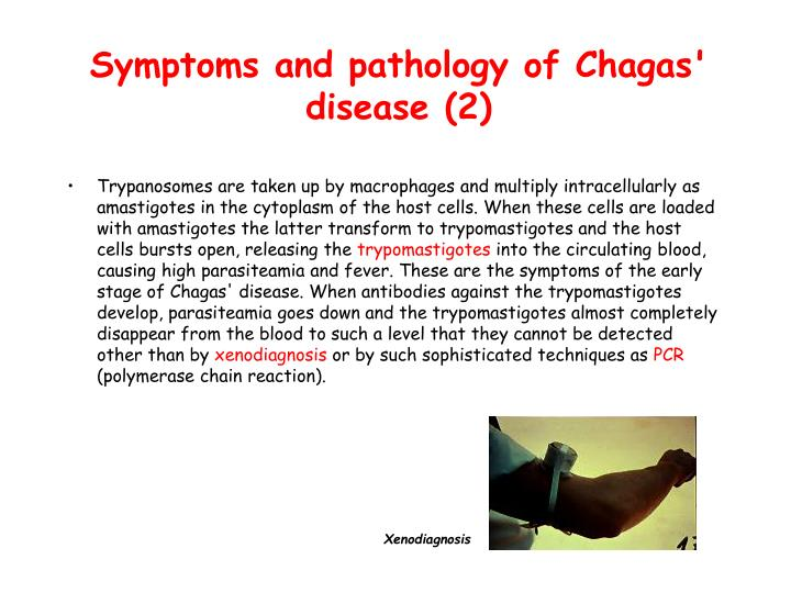 Symptoms and pathology of Chagas' disease (2)