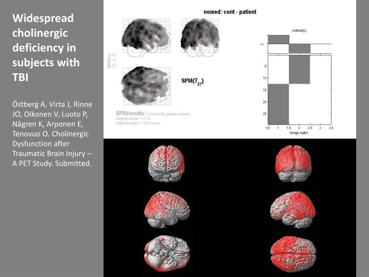 Widespread cholinergic deficiency in subjects with TBI