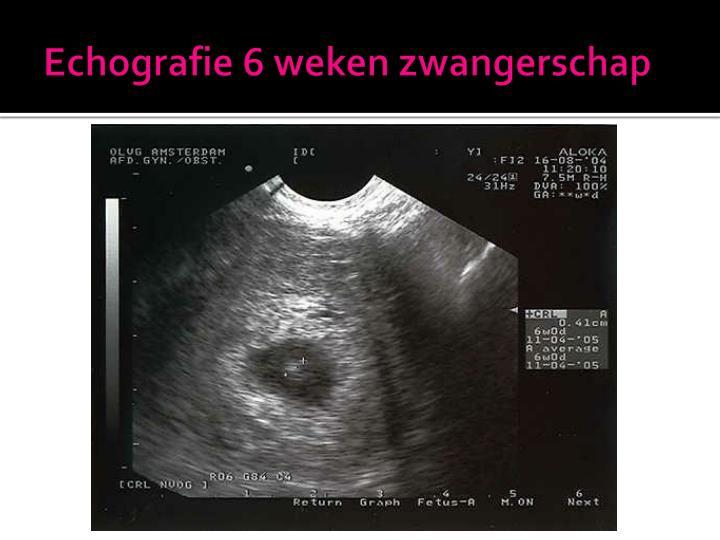 Echografie 6 weken zwangerschap