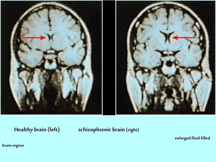 Healthy brain (left)                 schizophrenic brain