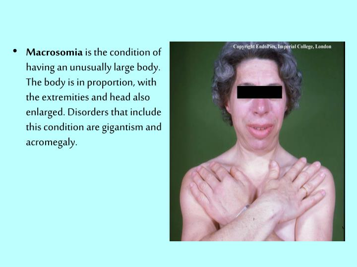 Macrosomia