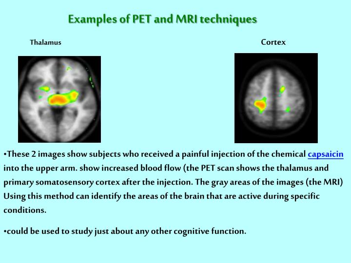 Examples of PET and MRI techniques
