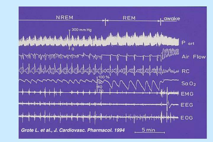 Grote L. et al., J. Cardiovasc. Pharmacol. 1994