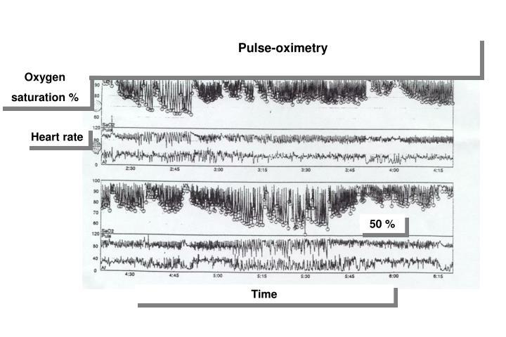 Pulse-oximetry