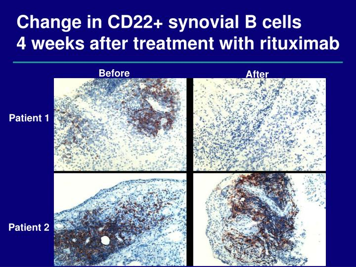 Change in CD22+ synovial B cells