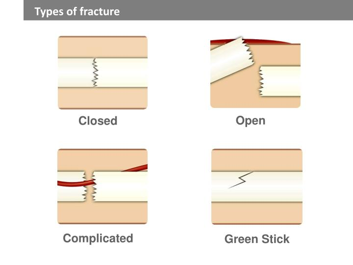 Types of fracture