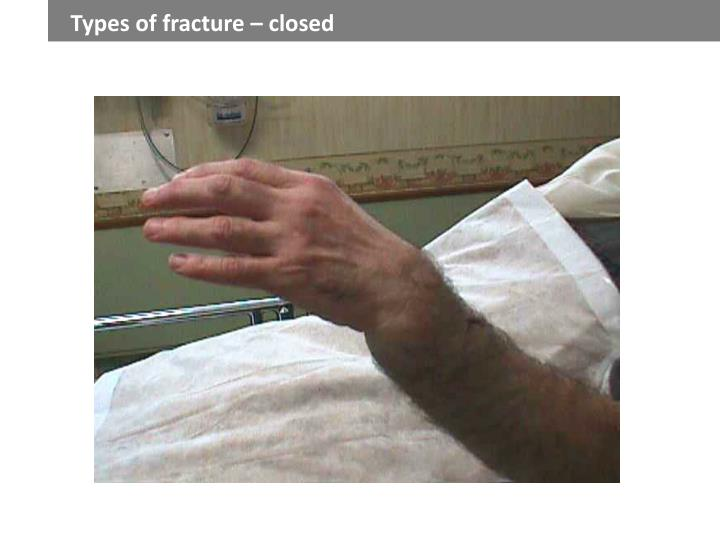 Types of fracture – closed