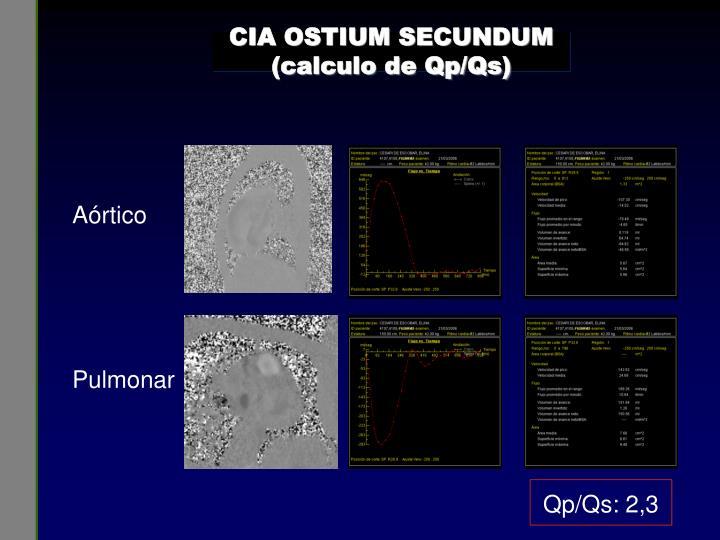 CIA OSTIUM SECUNDUM