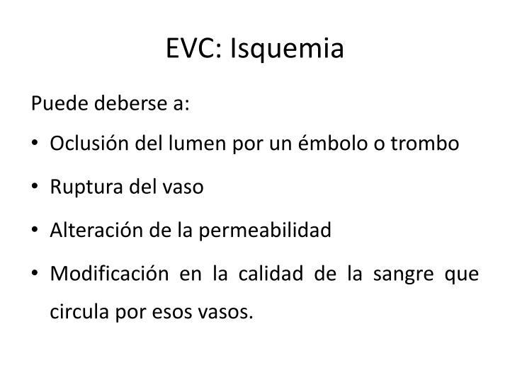 EVC: Isquemia