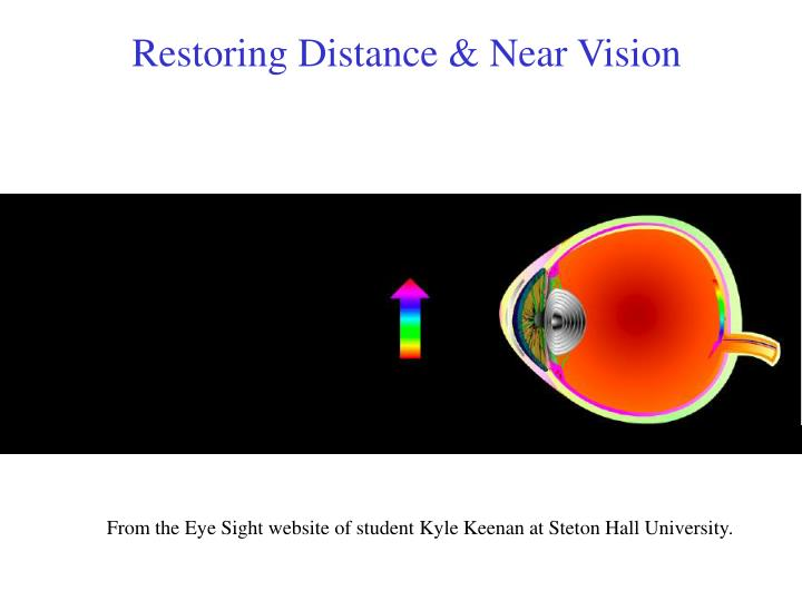 Restoring Distance & Near Vision