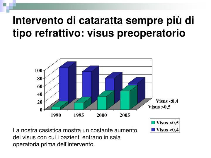 Intervento di cataratta sempre più di tipo refrattivo: visus preoperatorio