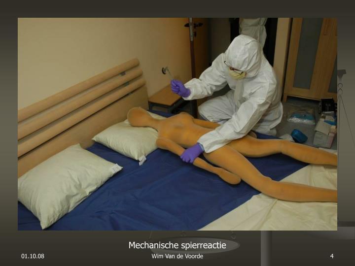 Mechanische spierreactie