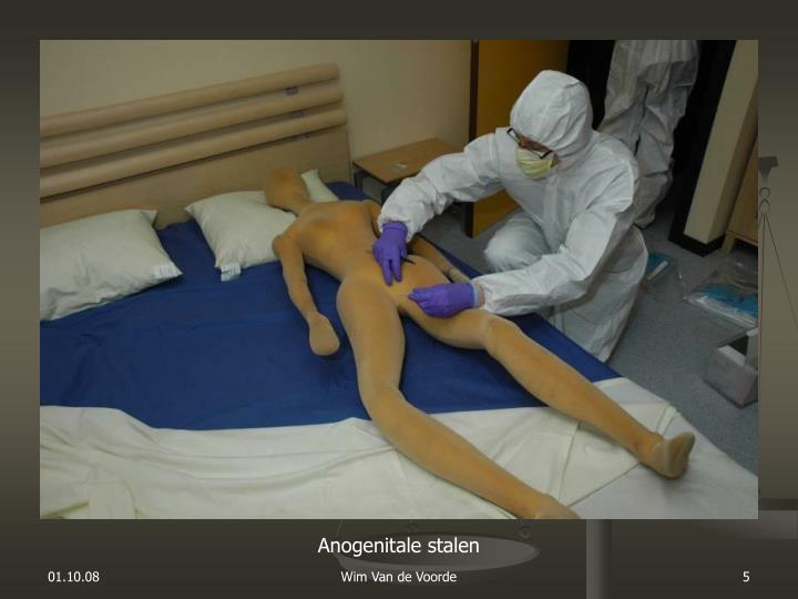 Anogenitale stalen