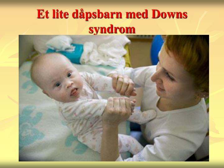Et lite dåpsbarn med Downs syndrom