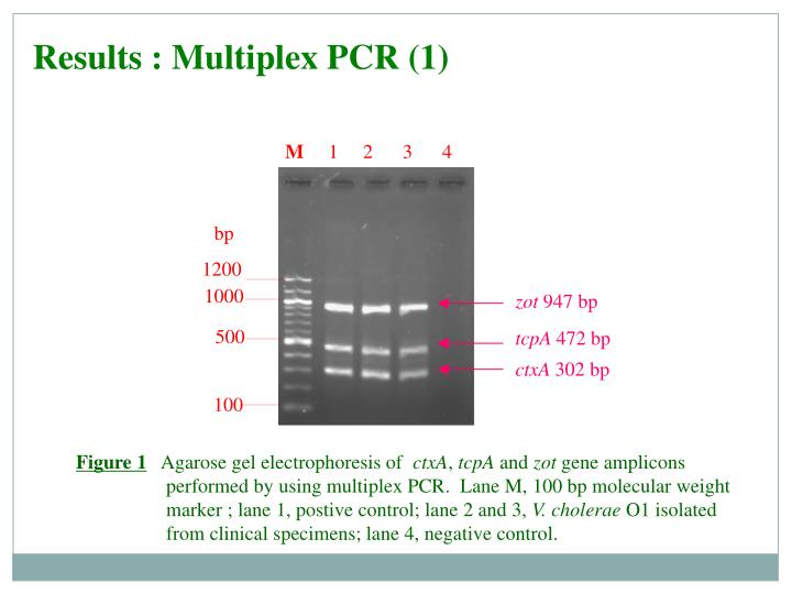 Results : Multiplex PCR (1)
