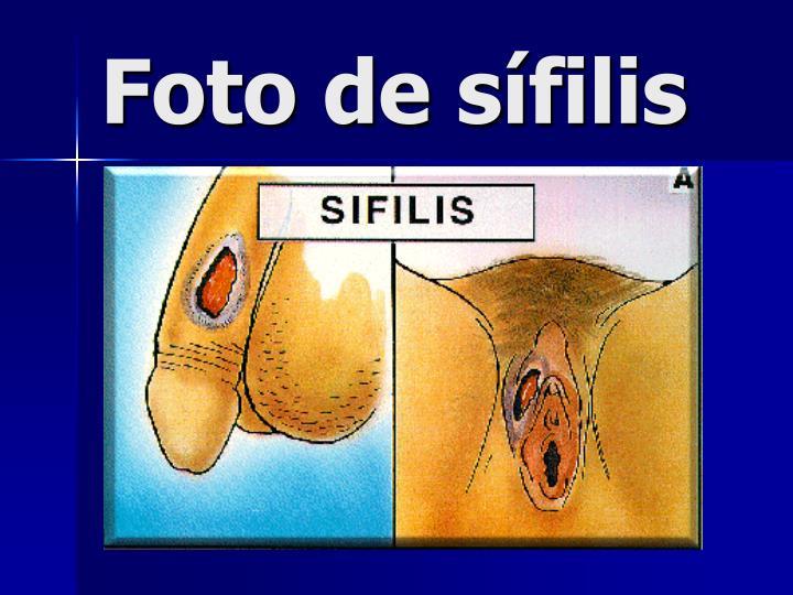 Foto de sífilis