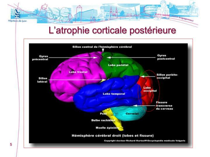 L'atrophie corticale postérieure