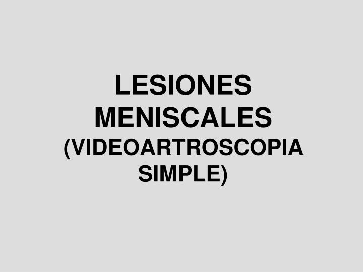 Lesiones meniscales videoartroscopia simple
