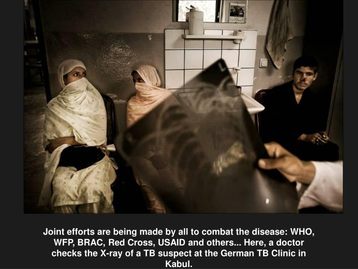 Joint efforts are being made by all to combat the disease: WHO, WFP, BRAC, Red Cross, USAID and others... Here, a doctor checks the X-ray of a TB suspect at the German TB Clinic in Kabul.