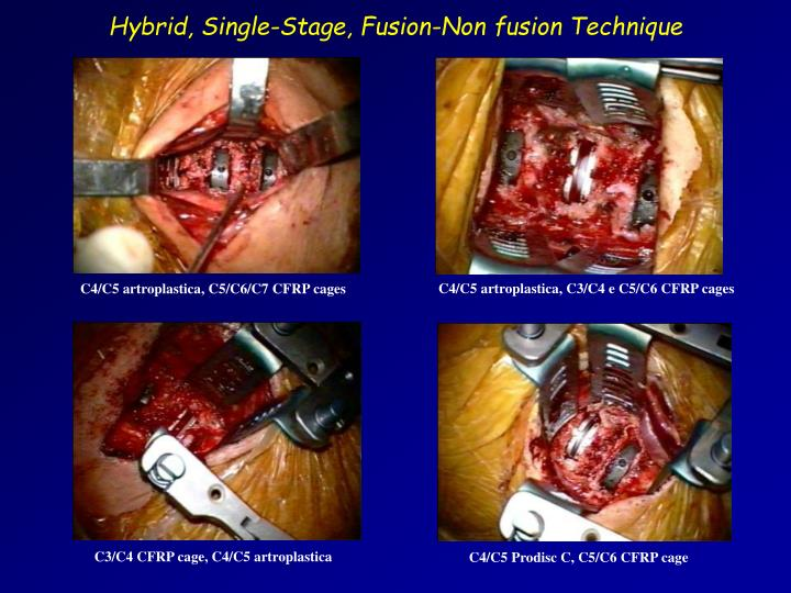 Hybrid, Single-Stage, Fusion-Non fusion Technique