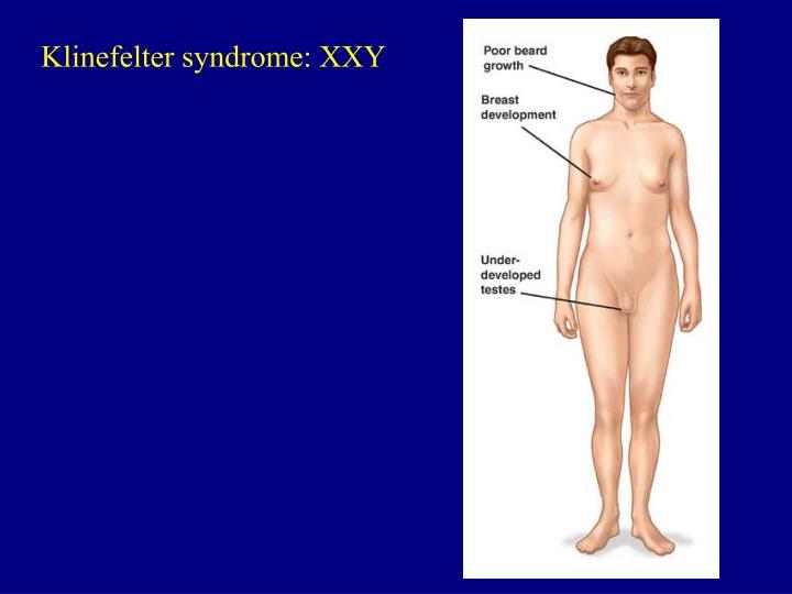 Klinefelter syndrome: XXY