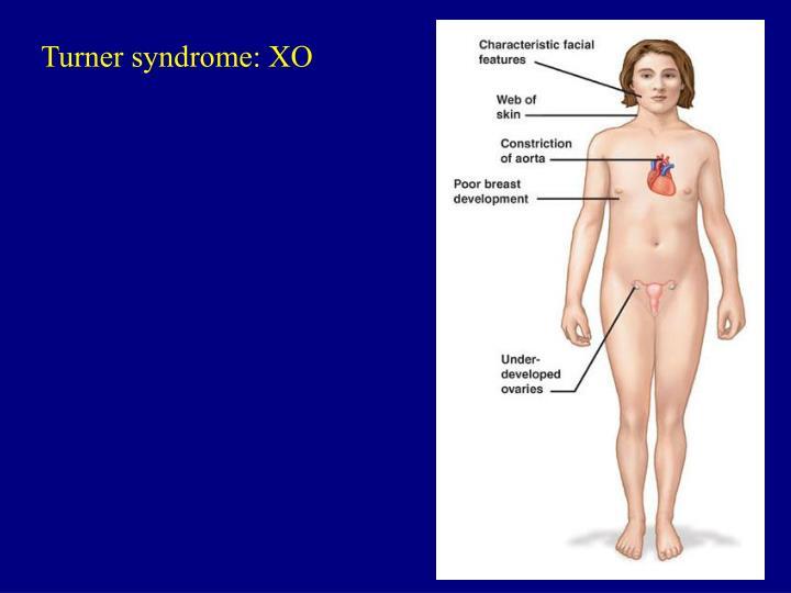 Turner syndrome: XO