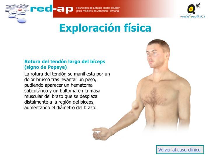 Rotura del tendón largo del bíceps (signo de Popeye)