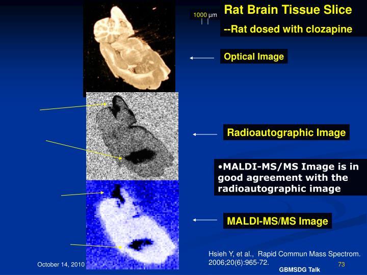 Rat Brain Tissue Slice