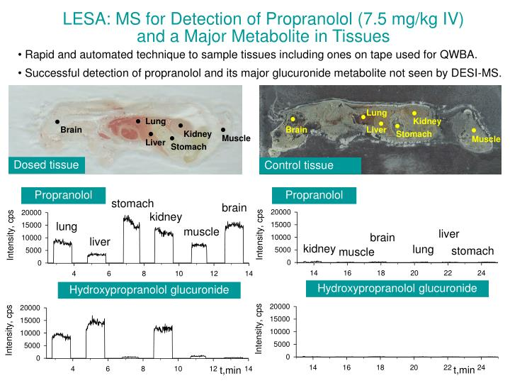 LESA: MS for Detection of Propranolol (