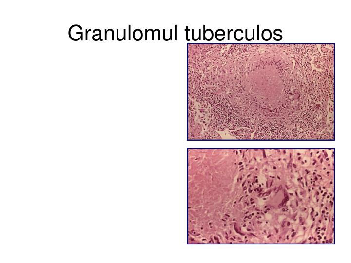 Granulomul t
