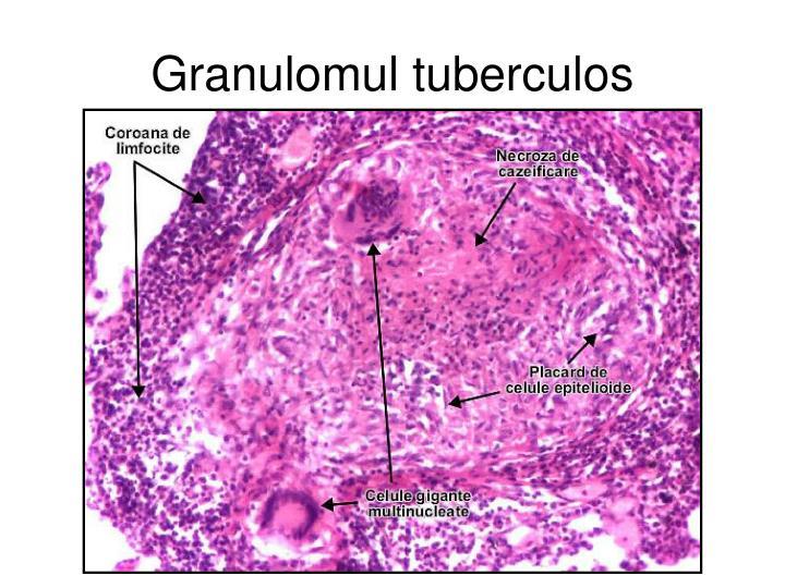 Granulomul tuberculos