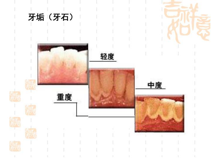 牙垢(牙石)